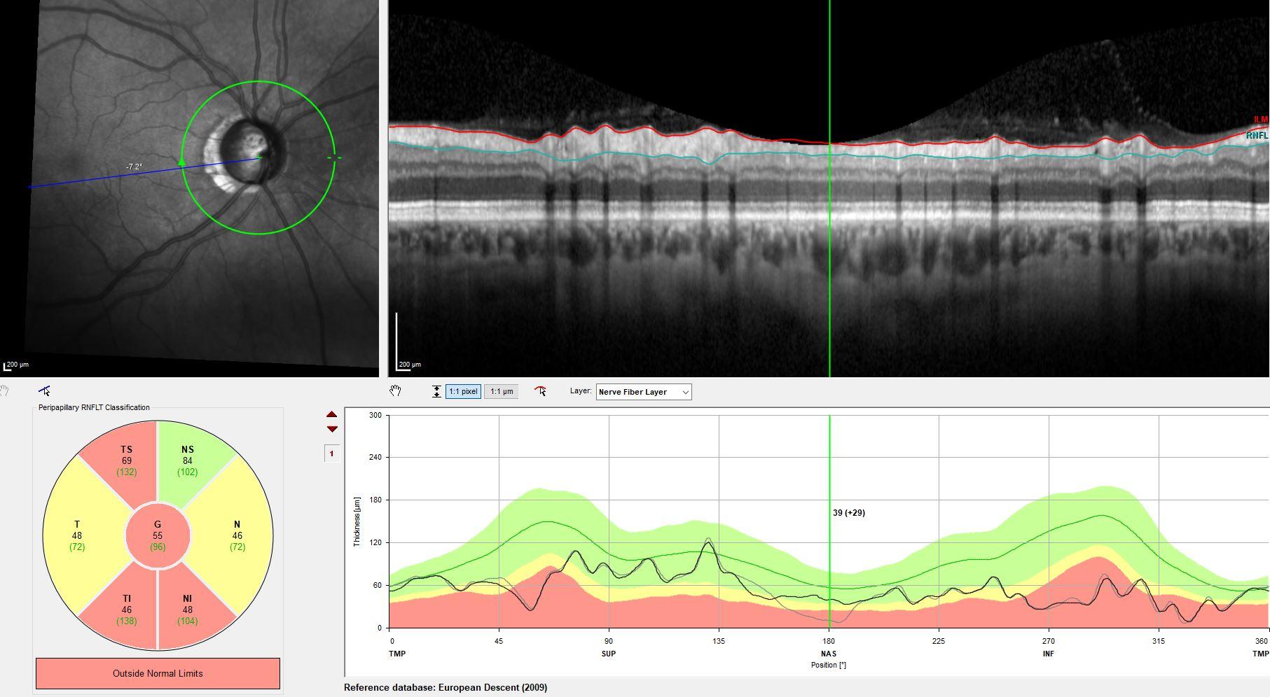 Augenklinik Castrop-Rauxel Grüner Star