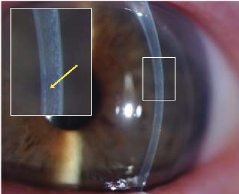 Augenklinik Castrop-Rauxel Hornhauttransplantation