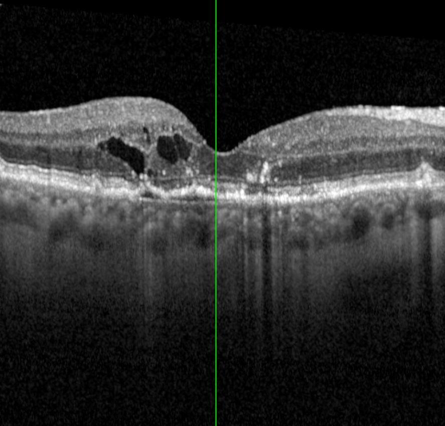 Augenklinik Castrop-Rauxel IVOM