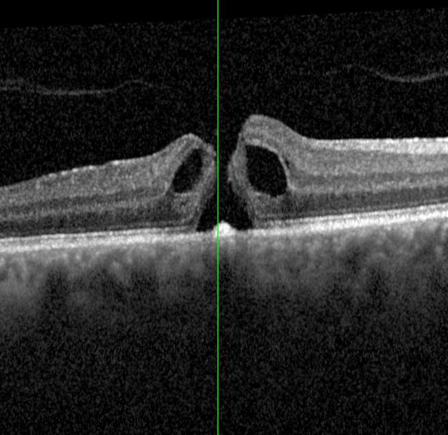 Augenklinik Castrop-Rauxel Netzhautchirurgie